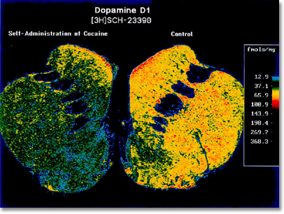 The image shows a brain region affected by cocaine. The right side is normal, and the left from an animal that took cocaine for almost a year. The normal side has lots of yellows and red, showing the normal level of a protein called a dopamine receptor. The loss of yellow and red on the left, shows that cocaine reduces the levels of this receptor; this may explain the drug-seeking behavior that results.