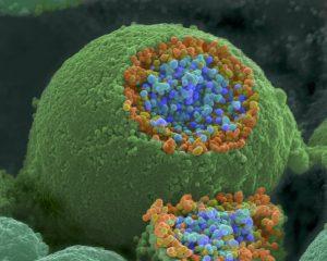 NIH nerve