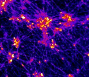 NIH neuron
