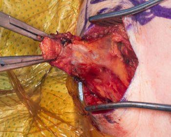 Lower trapezius transfer surgery