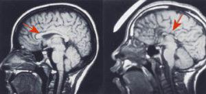 MRIs CC