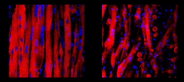 Side by side comparison of engineered healthy muscle tissue (left) and DMD model muscle tissue (right)