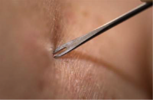 Bifurcated needle.