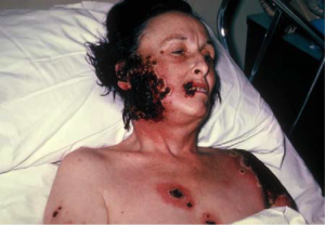 A victim suffers from the adverse effects of the smallpox vaccine.